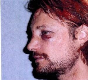 Gabriel Aubry mostra le ferite